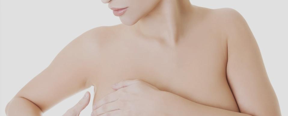 ניתוח הרמת שדיים