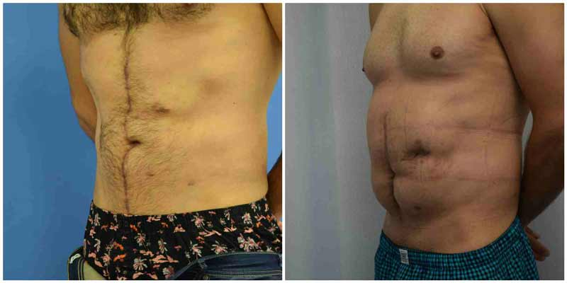 תיקון דופן בטן - לפני ואחרי