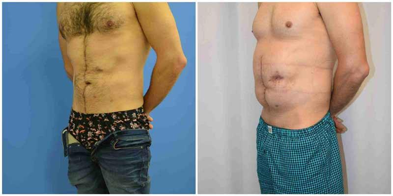 תיקון דופן בטן - זווית