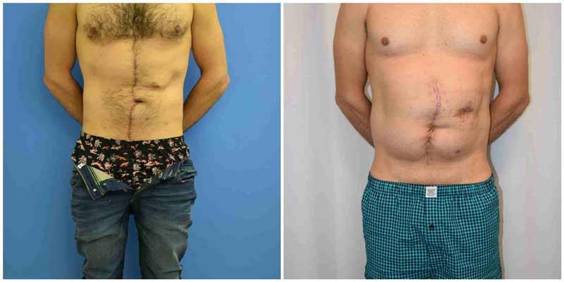 תיקון הרניה לפני ואחרי