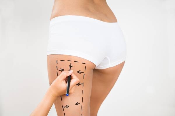 ניתוח מתיחת ירכיים לחיטוב הירכיים