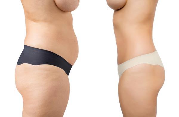 טיפול שאיבת שומן