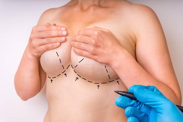 ניתוח לתיקון חזה אסימטרי
