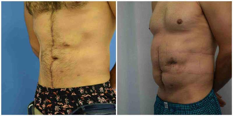תוצאות ניתוח מתיחת בטן